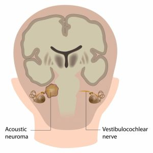 Graphic showing acoustic neuroma