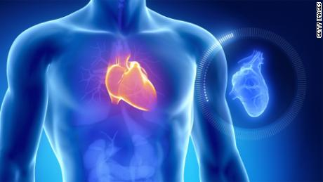 Evolution may be why humans are prone to heart attacks, study says